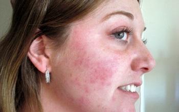 Аллергические высыпания на теле