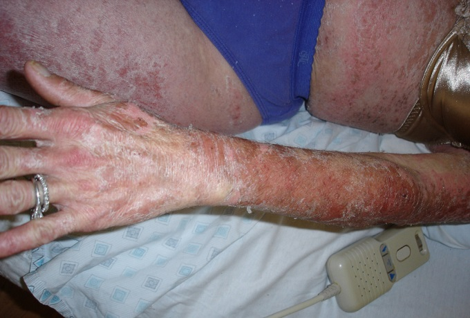 Аллергия кожное проявление