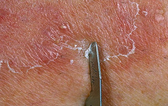 Микроспория (стригущий лишай) у человека: пути заражения, лечение, гигиена, профилактика