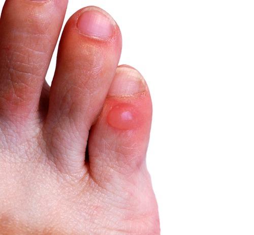 как избавиться от мозолей на пальцах ног от тесной обуви