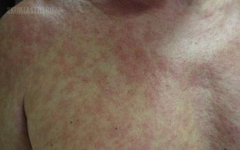 Медикаментозная аллергия у детей