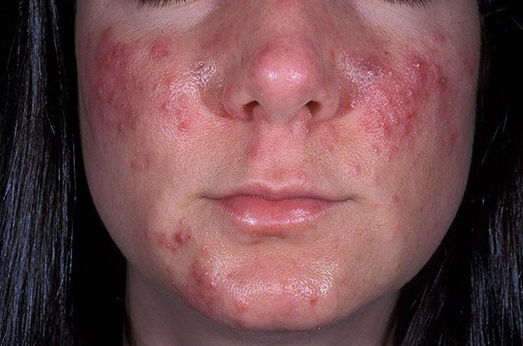 как очистить лицо от веснушек за неделю