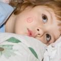 Лечение и профилактика стригущего лишая у ребенка