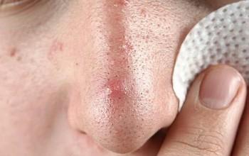 Как самостоятельно убрать черные точки на носу и уменьшить поры