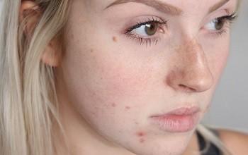 Как избавиться от угрей на лице. Особенности лечения в домашних условиях