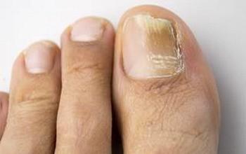 Ногтевой грибок на ногах. Особености лечения и противомикозные средства