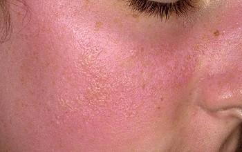 Чем лечить фотодерматоз – аллергию на солнце