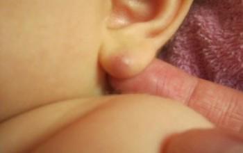 Прыщ на мочке уха