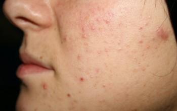 Причины появления прыщей на щеках. Лечение медикамендами и народными средствами