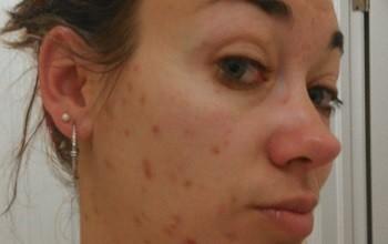Особенности лечения угревой сыпи на лице у взрослого человека