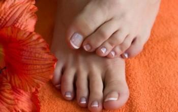 Мозоль между пальцами ног (Межпальцевая)