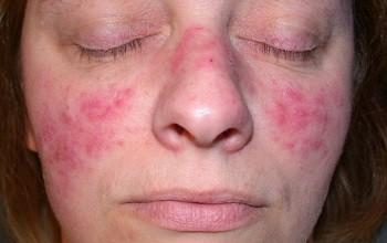 Как лечить розацеа на лице? Обзор эффективных средств борьбы с розовыми угрями