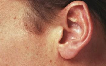 Белые подкожные угри в ушах