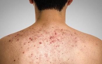 Как лечить угревую сыпь на спине