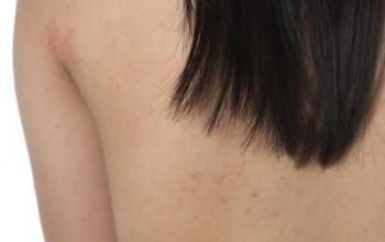 Симптомы, формы проявления и причины аллергической сыпи у детей. Эффективные методы лечения и полезные рекомендации