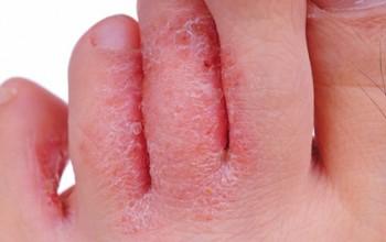 Грибок (микоз) на стопе и между пальцами на ногах. Причины появления и лечение заболевания