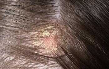 Грибковые заболевания на волосистой части головы