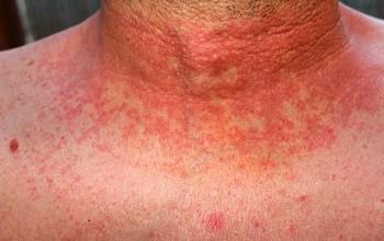 Причины появления и методы лечения аллергической сыпи на теле у взрослого человека