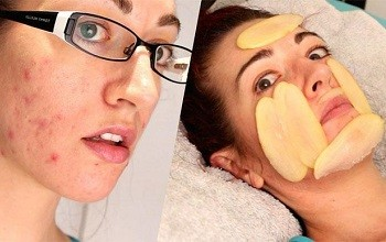 Рецепты из сырого и вареного картофеля для лечения прыщей на лице: маски, отзывы