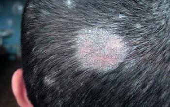 Микроспория на волосах и коже головы у взрослых и детей