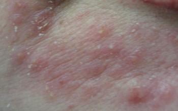 analnie-treshini-pri-dermatite