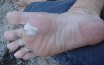 Лечение водяной (мокрой) мозоли на ступне