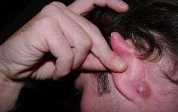 Причины появления прыщей за ушами