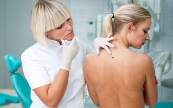 Папилломы на теле как лечить