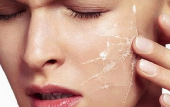 Характеристика сухой кожи