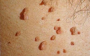 Вирус папилломы человека у женщин в гинекологии как лечить