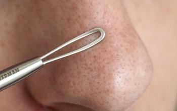 Avon подушечки для пилинга кожи лица профессиональное очищение