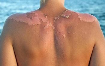 Возникновения пигментных пятен на обгоревшей на солнце коже