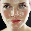Жирная кожа