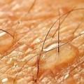 Терморегуляция кожи
