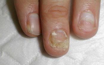 Лечение микоза на ногтях рук в домашних условиях. Популярные народные способы